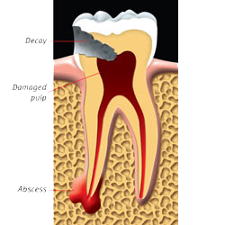 An Abscessed Tooth